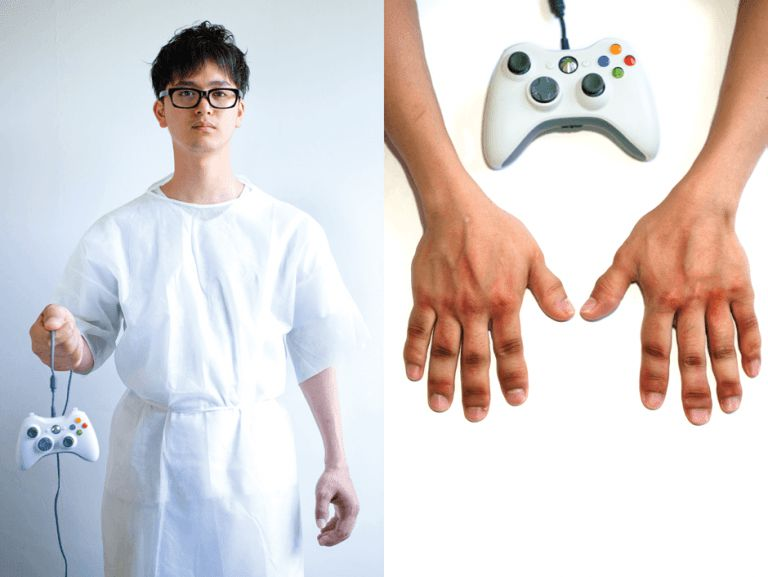 Read more about the article 8 Horrible Gaming Injuries Caused by Playing Video Games Too Much